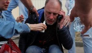 Amnesty International предоставит документы о пытках, издевательствах, раздеваниях догола мирных белорусов