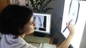 Белорусский стартап научился выявлять бессимптомную пневмонию